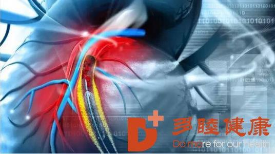 日本医疗:什么情况下不能做心脏搭桥手术呢
