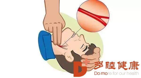 """血液净化:""""颈动脉斑块和狭窄""""该如何应对"""