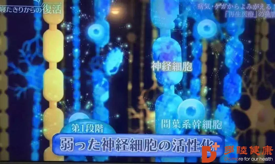 偏瘫、失语?日本干细胞逆转脑中风后遗症