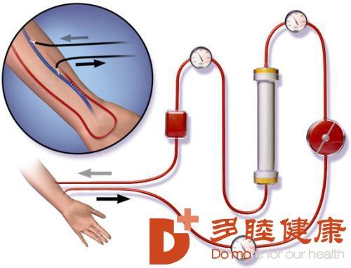 血液净化小知识:体检时发现血管上有斑块是什么情况?