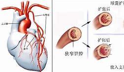 日本看病:何为微创心脏搭桥 微创心脏搭桥的好处