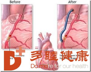 日本看病:哪类患者适合心脏搭桥手术