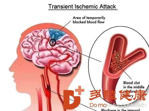 """干细胞针对脑梗治疗,让脑梗""""求饶"""""""