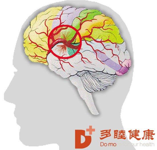日本干细胞:脑出血引起的后遗症,怎么治疗?