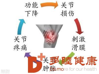 膝关节炎治疗,不得不提的间充质干细胞!