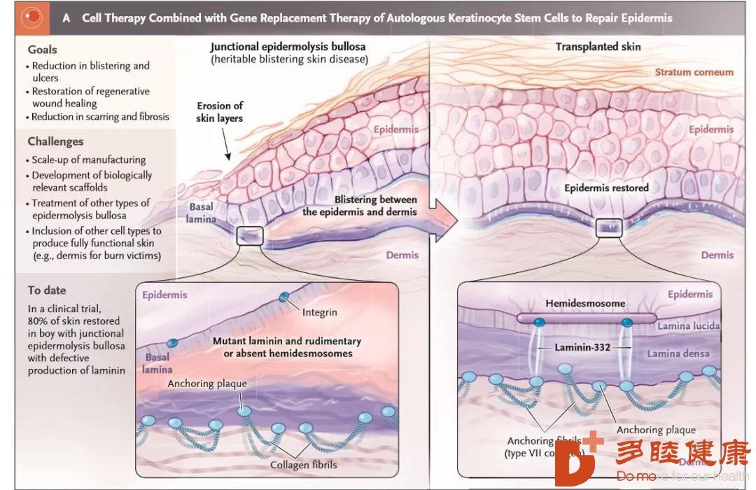 """""""万能干细胞""""用途广泛,这些病得到了治疗?"""
