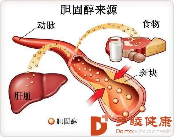血液净化:你的血液有多脏——胆固醇结晶