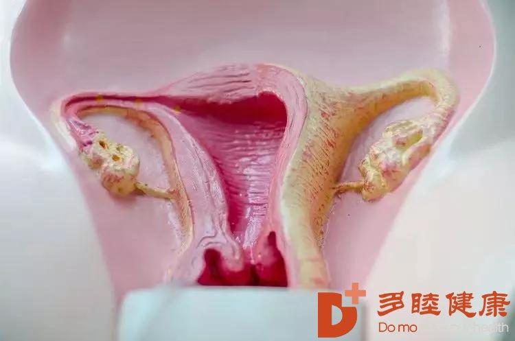 卵巢早衰干细胞治疗有方法,早看早知道!
