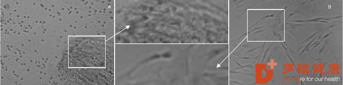 干细胞治疗糖尿病下肢血管病变症状