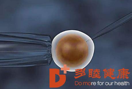 青光眼治疗现状及干细胞治疗青光眼的研究进展