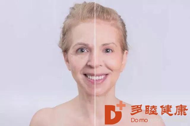 干细胞帮去除你脸上的祛斑,看起来年轻很多!