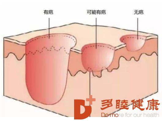 干细胞治疗皮肤瘢痕起到什么作用