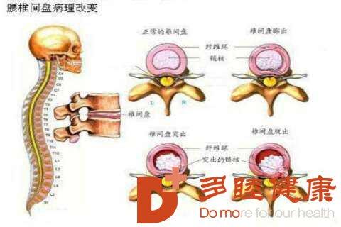 骨髓间充质干细胞治疗腰椎间盘退变