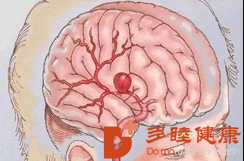 干细胞技术提供治疗脑梗塞后遗症新思路