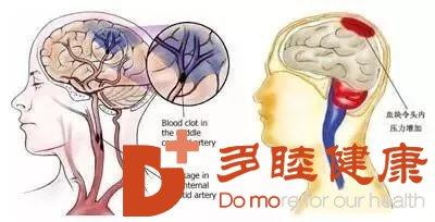 脑梗塞治疗,干细胞能否提供应对治疗方式