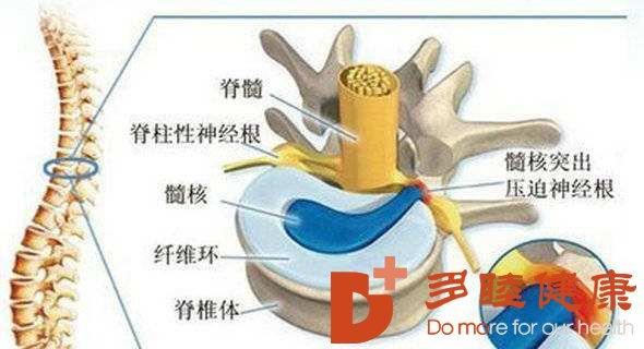 细胞移植修复椎间盘的新视角与新进展