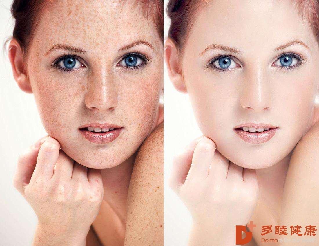现在知道为什么要选择干细胞抗皮肤衰老了么?