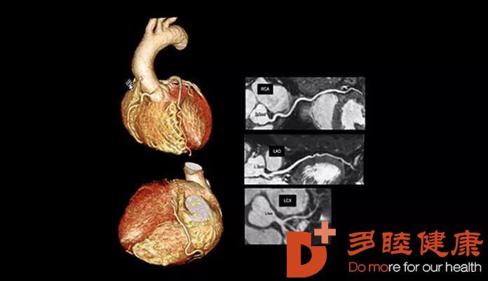 心脑血管疾病的筛查,你知道多少?