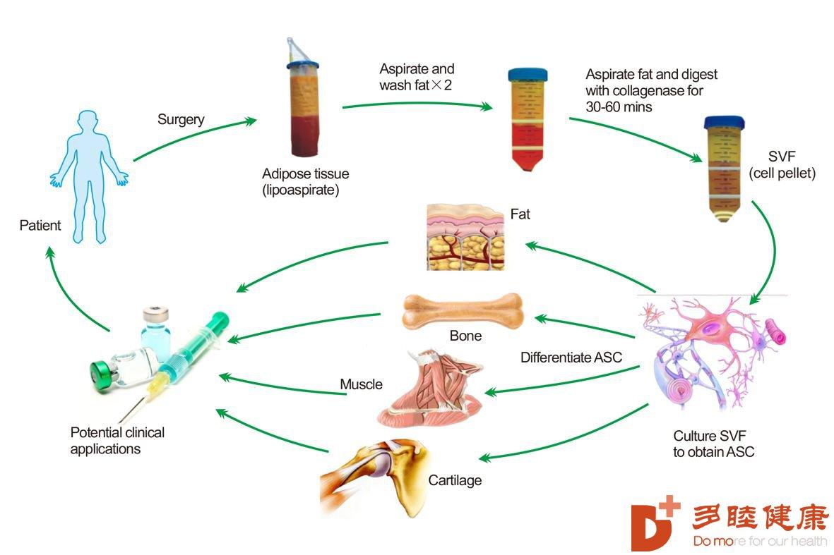 干细胞未来有望改变多种人类疾病的命运!