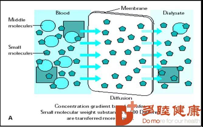 多睦告诉你血液透析原理,种类,适应症和禁忌症