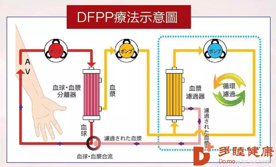 """血管""""清洁工""""——DFPP血液净化疗法详解"""