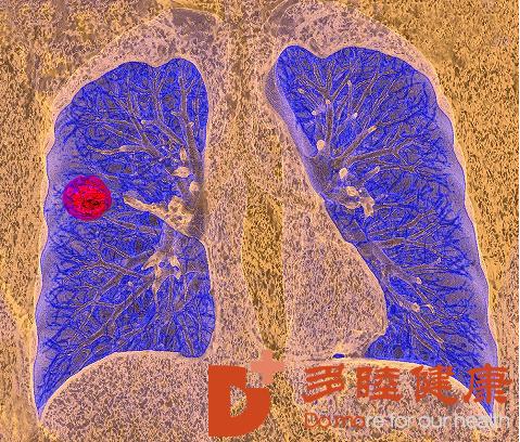 小细胞肺癌盼首的希望!多种免疫疗法可显着提高生存率!