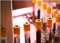 """血液净化:高血脂的人有3种""""面相"""",是否要检查血管堵塞了"""