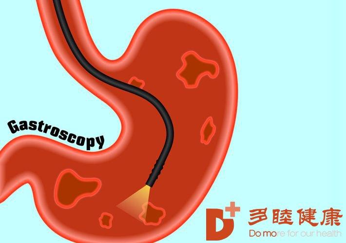 赴日体检:日本胃肠镜检查用的是什么技术?