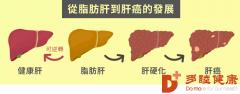 日本干细胞:原来瘦子也会得脂肪肝