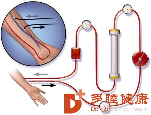血液净化:净化体内血液,杜绝疾病!