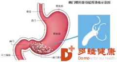 赴日体检:预防胃癌,从消灭幽门螺旋杆菌开始