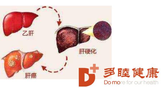 干细胞治疗:肝硬化早期 中期 晚期,应如何治疗?