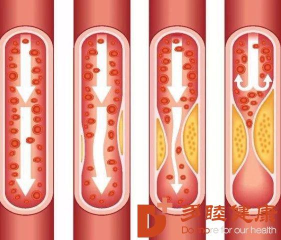 血液净化:维护血管健康从预防抓起