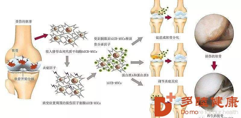 """干细胞治疗:怎么治疗有""""不死癌症""""之称的骨关节炎"""