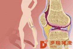 干细胞治疗:可以让患者从根本上改善软骨缺陷!