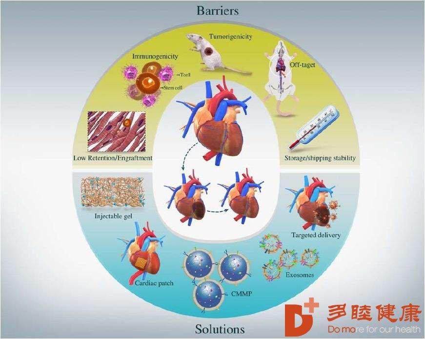 """干细胞治疗:让高血压""""轻松解压"""",重获健康生活"""