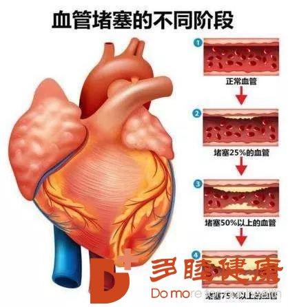 """血液净化:身上3处疼,可能是血管堵了别给血管""""添堵""""了"""