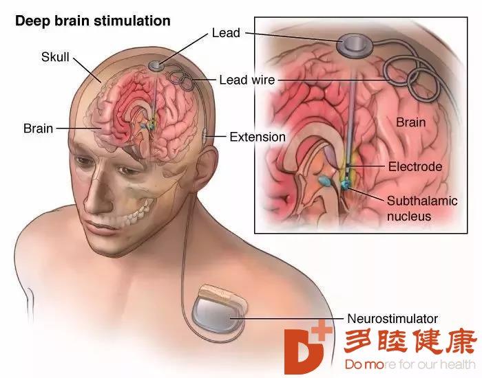 干细胞治疗:干细胞疗法,让大脑自我修复成为可能