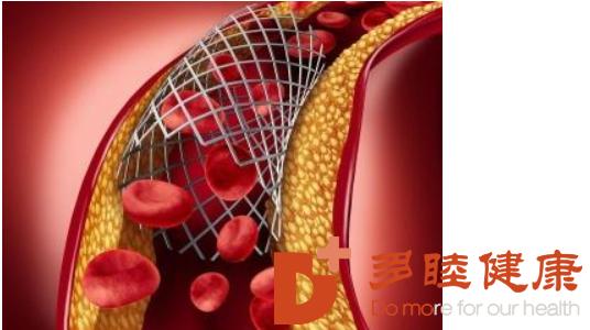 干细胞治疗:冬天应该怎样预防高血压,中风患者,糖尿病带来的威胁