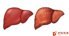 干细胞治疗:身体出现哪些症状是肝硬化的表现,肝脏受损是否可逆?