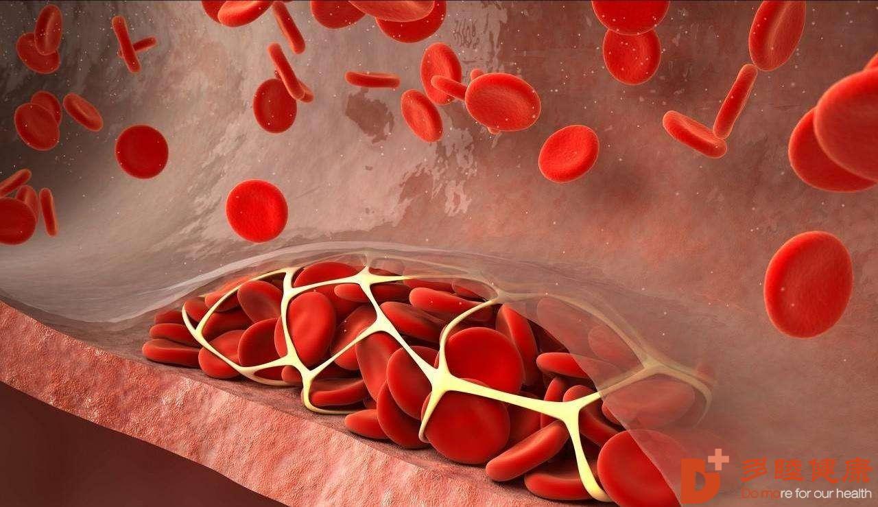 血液净化:人气超高的血液净化疗法?赴日治疗全过程