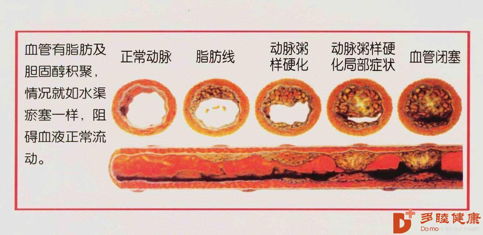 血液净化:血液粘稠易得血栓,危害真不小!