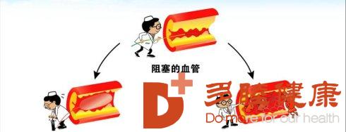 赴日治疗:面对心梗日本专家建议应该采取的3大措施!