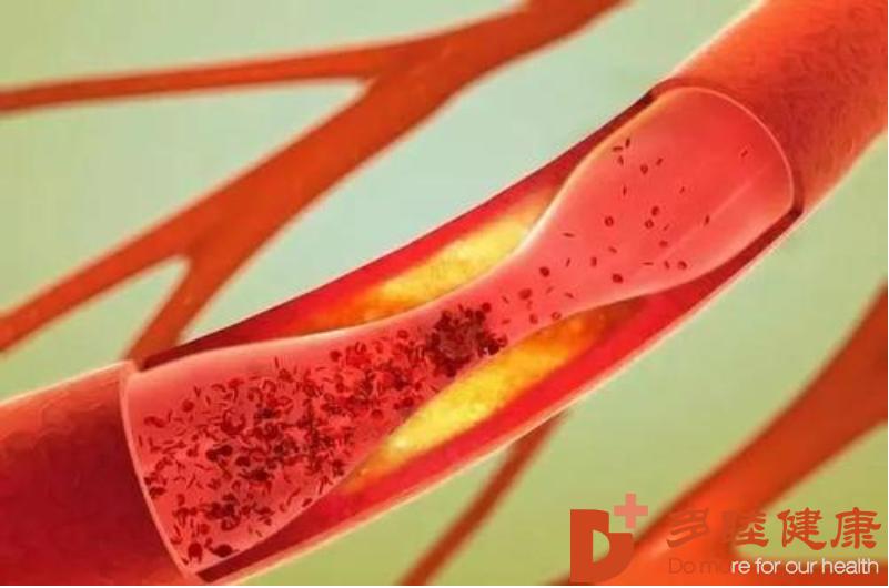 干细胞治疗:预防心血管疾病,这4种方法是重点!