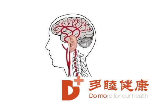 血液净化:脑血栓的前兆有哪些?这些症状需要重视