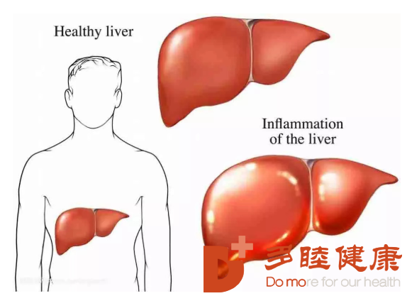 干细胞治疗:肝病无惧,干细胞给您治愈的勇气!