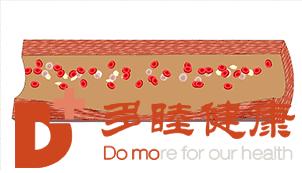 血液净化:血管是这样被堵住的!每天5分钟,预防血管堵塞!