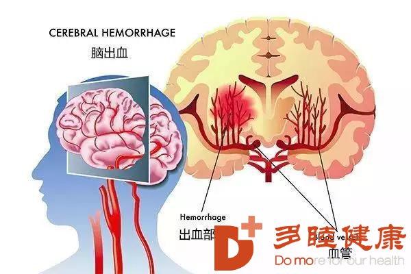 干细胞治疗:修复脑梗塞后遗症治疗新思路