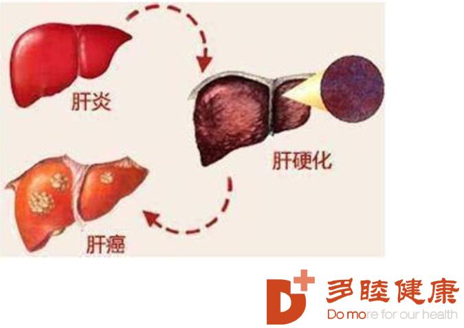 干细胞治疗:干细胞移植技术为肝硬化治疗提供了一条新途径!