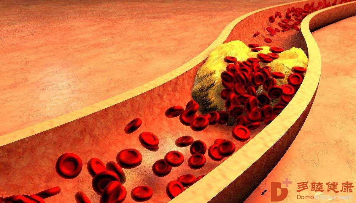 日本血液净化:高血脂症,你的认识可能有误区